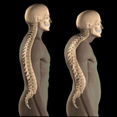 Left: healthy spine. Right: spine with kyphosis and lordosis